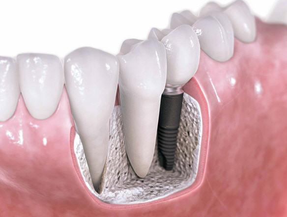 Короткая имплантация зубов